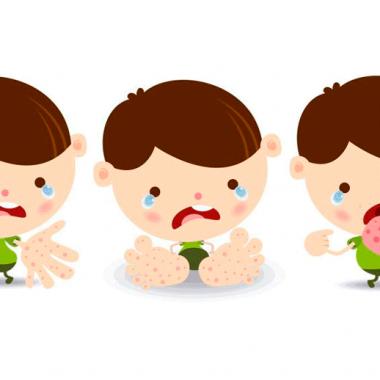 Virus boca manos pies en bebés- salud infantil